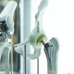 3D-Printed Healthcare – Devices Transforming Hospitals Forever
